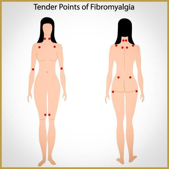 fibromyalgia-3-1024x1024