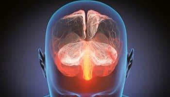 Cannabis vs Sclérose en plaques