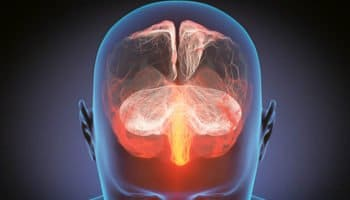 Cannabis vs Multiple sclerosis
