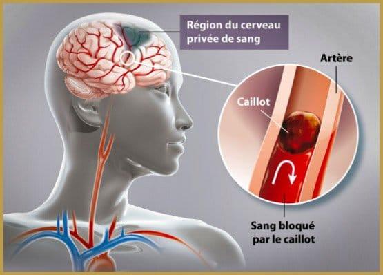 Neuro-stroke