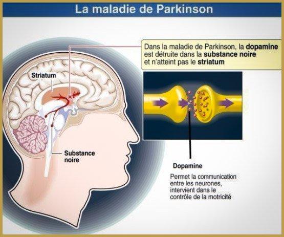 Паркінсон