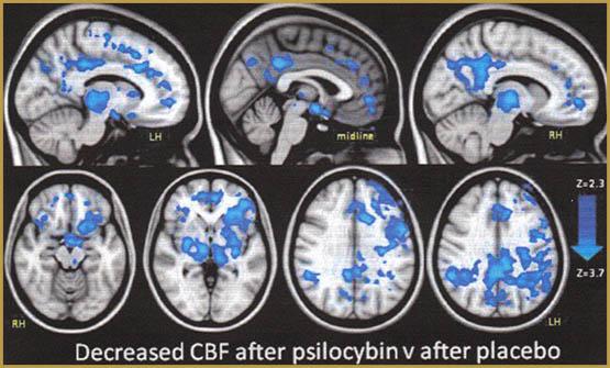 Psilocybin ส่งเสริมการเจริญเติบโตของเซลล์สมองใหม่