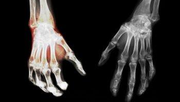Rôle du CB2 dans le syndrome douloureux régional complexe