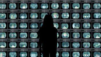 Trouble déficitaire de l'attention, hyperactivité & impulsivité