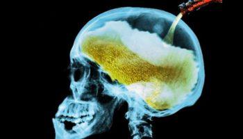 Cannabis contre Alcool: pourquoi le plus dangereux des deux est légal?