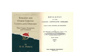 Dr. William Richard, epilepsia
