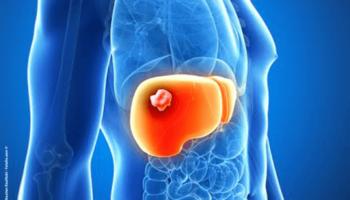 chimiothérapie ,cancer du foie