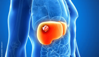 хіміотерапія, рак печінки
