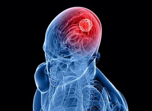 ung thư, u nguyên bào thần kinh đệm