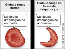 sickle cell disease, sickle cell disease