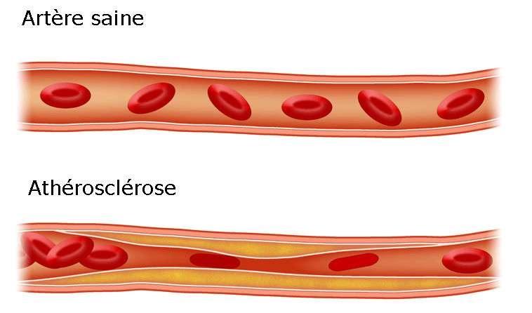 durcissement des artères,carotide,athérosclérose